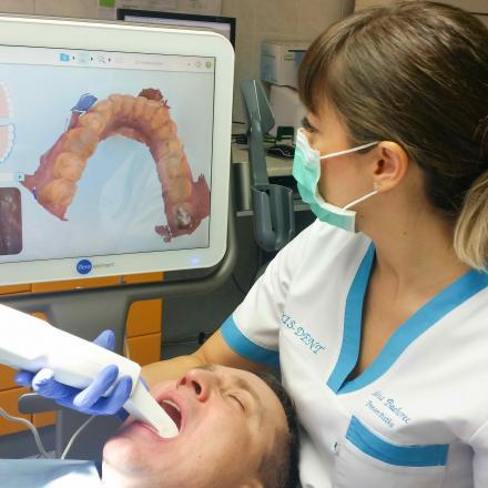 Video o skenovaní zubov